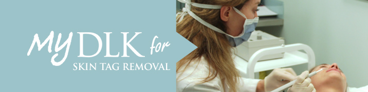 DLK_Toronto_skin_tag_removal_treatment_banner
