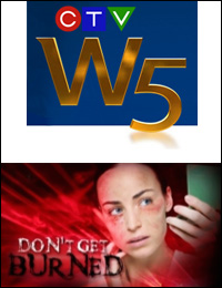 The painful side to laser skin treatments – W5 - January 28, 2012