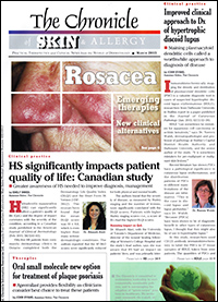 The Chronicle of Skin and Allergy - March 2015 | PDT Treatment