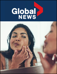 Global News: Winter Acne | November 21, 2018