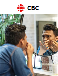 CBC: Causes of Adult Acne   August 21, 2019